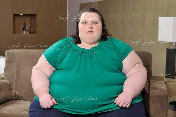 504 واژه ضروری انگلیسی - معنی واژه obesity با استفاده از عکس و تصاویر